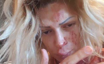 Srpska pevačica brutalno pretučena? (UZNEMIRUJUĆE FOTOGRAFIJE)