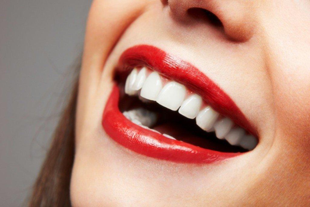 Uklonite kamenac sa zuba uz pomoć ova dva sastojka