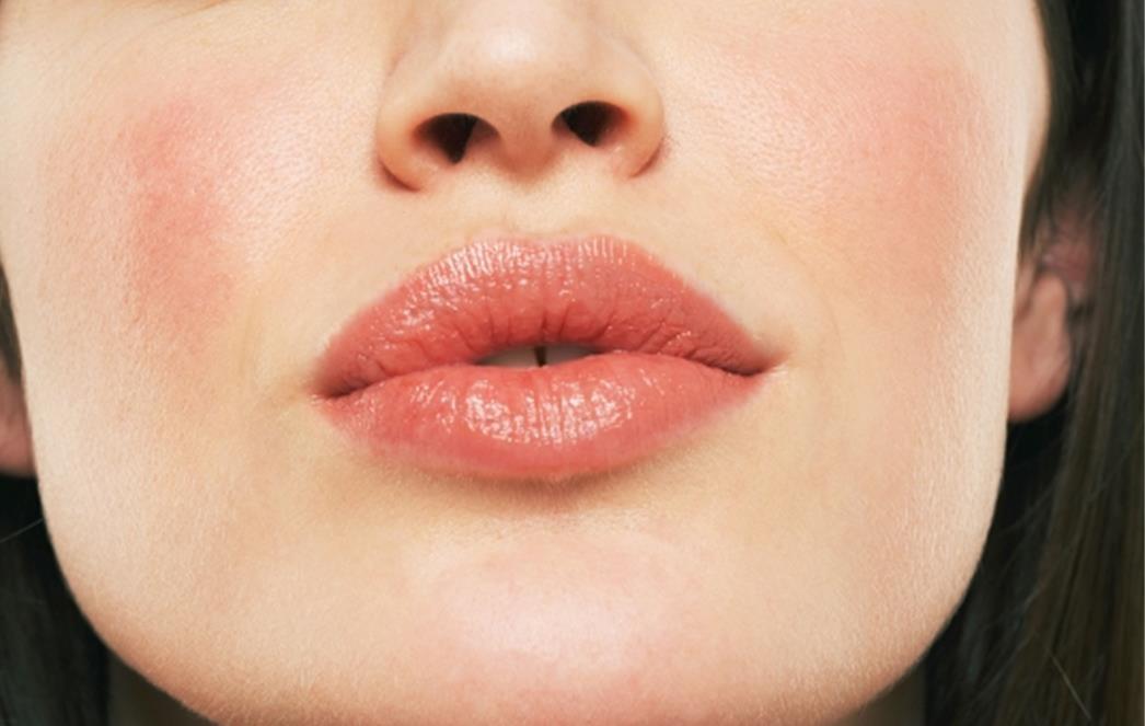 Prirodni balzam za lepše usne