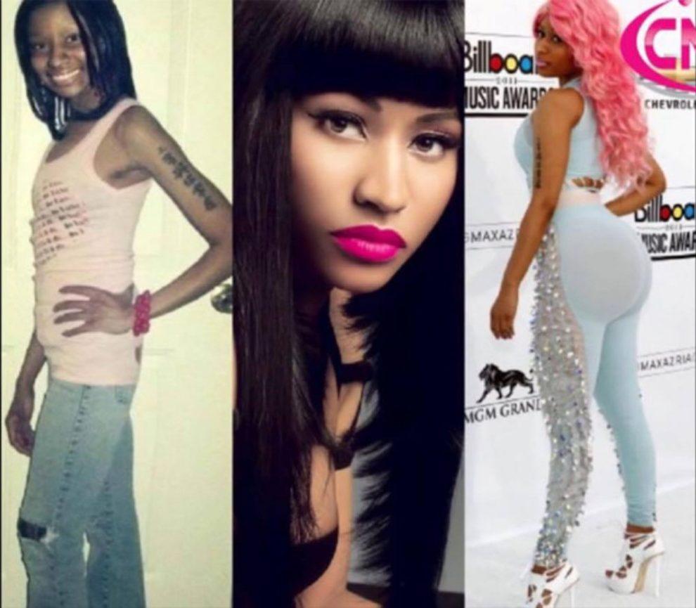 Ovako je izgledala Nicki Minaj pre plastičnih operacija