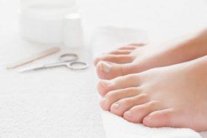 Zašto dolazi do urastanja noktiju na nogama i kako da to sprečite